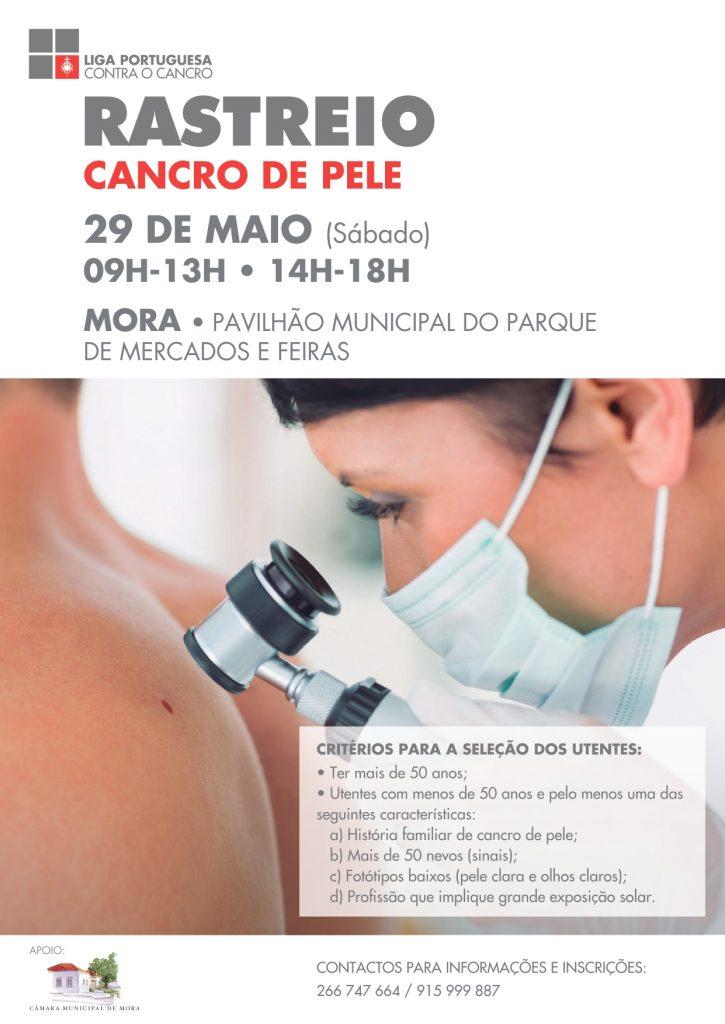 Rastreio Cancro da Pele